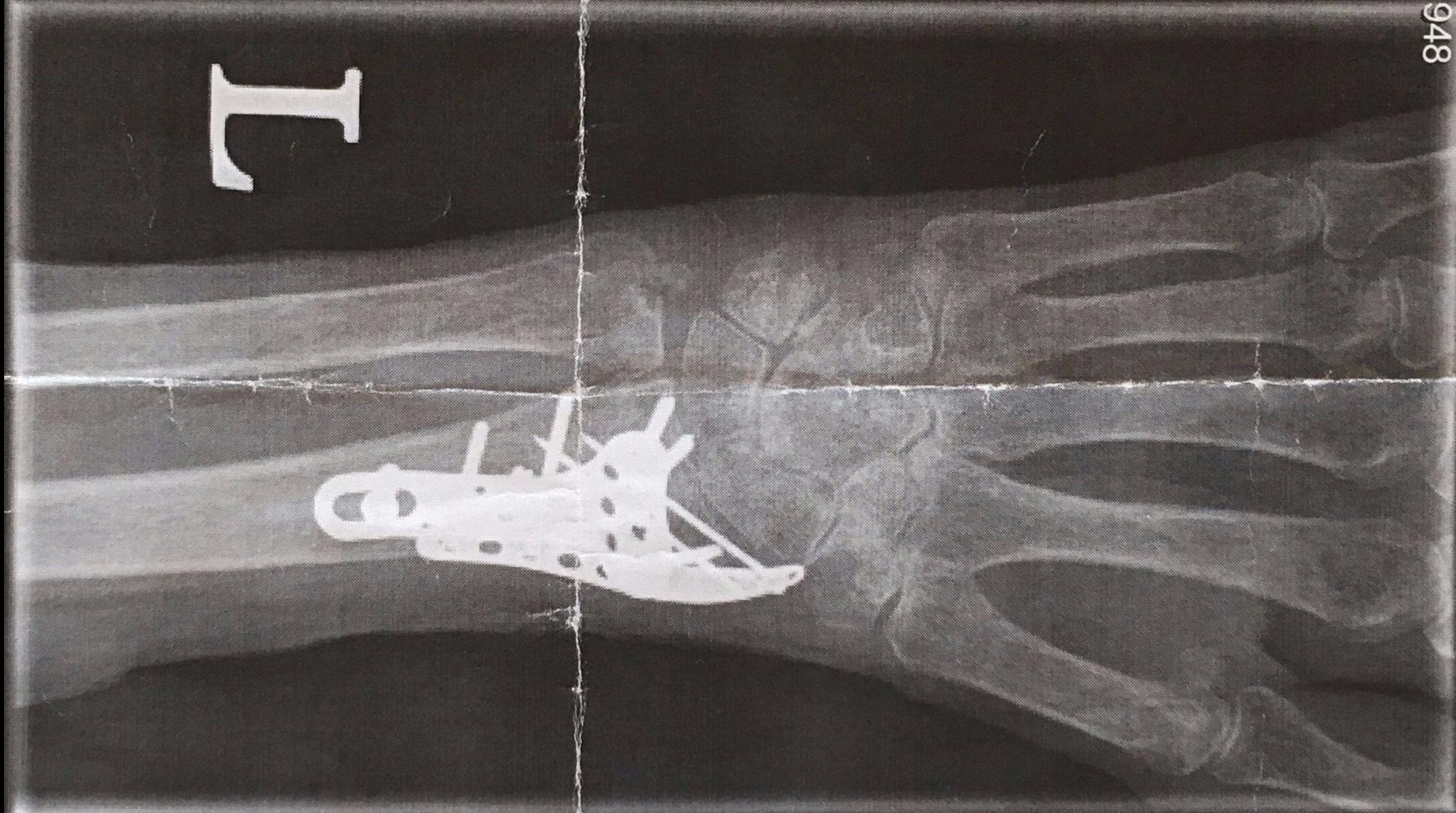 wrist-x-i-e1495420924799.jpg